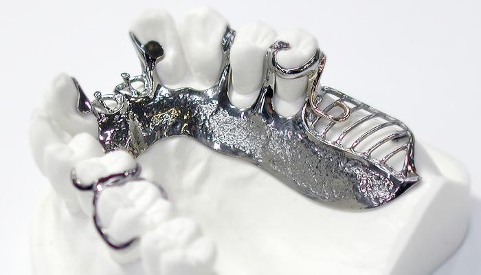 チタン床のデンチャー(義歯)